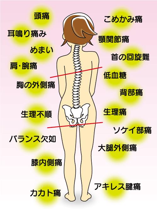 産後の骨盤矯正イメージ