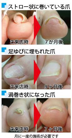 巻き爪の状態